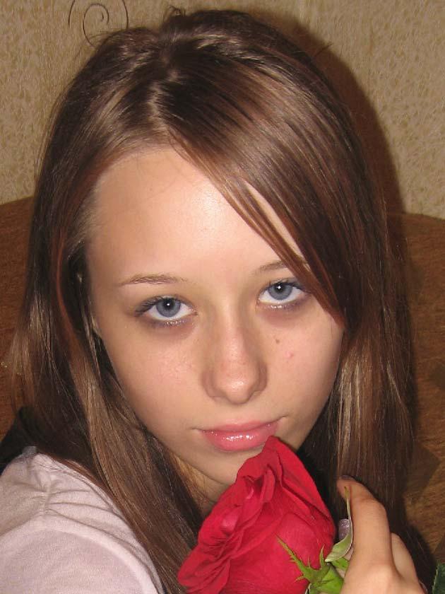 Фото девушки с неровной кожей
