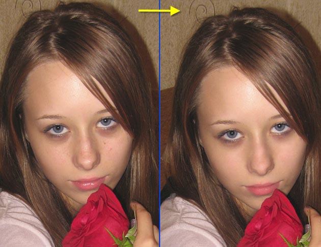 Фото девушки с неровной и ровной кожей