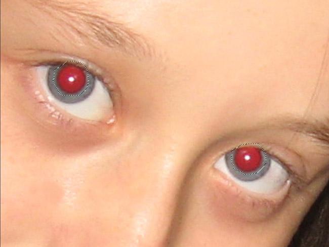 сложно организовать фото глаза с красными зрачками подойдут для